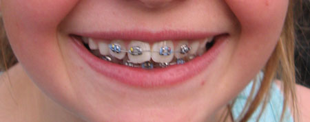 The gallery for --> Purple Colored Braces